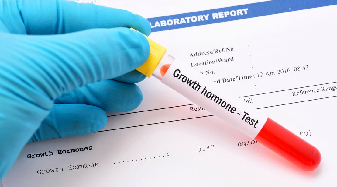 What Is a Human Growth Hormone?
