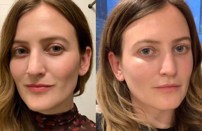 The Benefits of Injectable Fillers With a Hyaluronic Acid Base